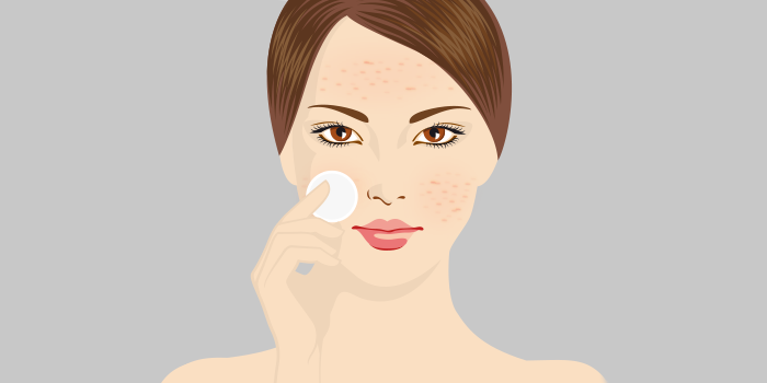 Rol cosmetica acne